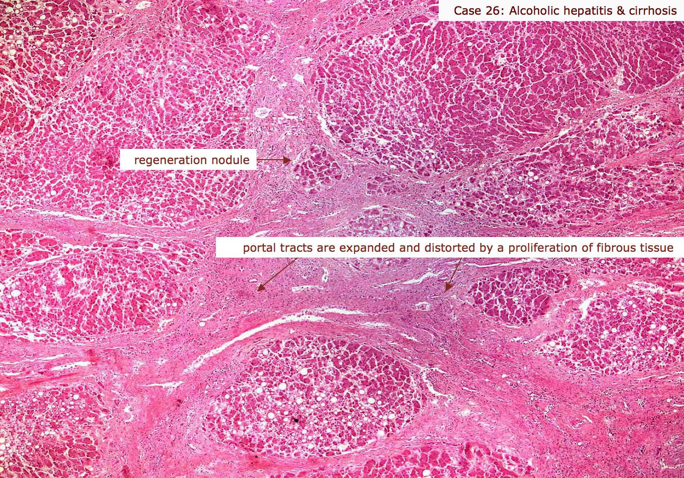 Index of /Medics/07_proliferative inflammation
