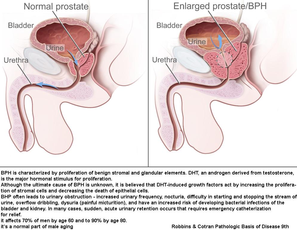 prostata hypertrophia